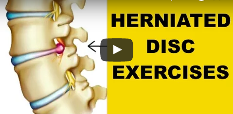 best exercises for herniated disc in back (beat sciatic nerve pain, Human Body
