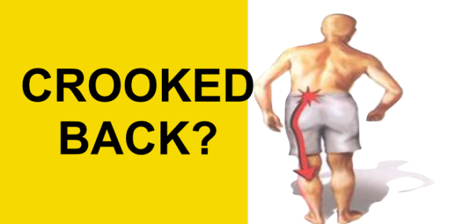 Herniated Disc Causing Crooked Back? Do This For Sciatic Nerve Pain Relief (Antalgic Lean)