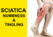 sciatica numbness and tingling
