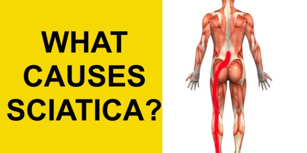 what causes sciatica