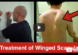 how to fix winged scapula