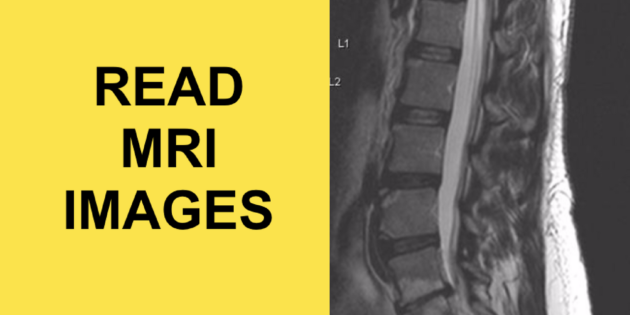 how to read an mri lumbar spine herniated disc sciatica