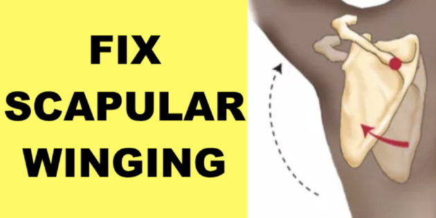 how to fix scapular winging winged scapula exercises