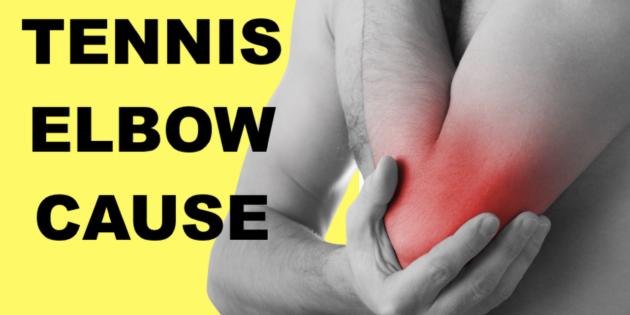 tennis elbow cause test lateral epicondylitis