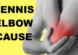 tennis elbow cause test lateral epicondylitis